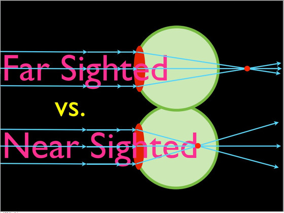 Nearsightedness and Farsightedness Causes and Corrective Treatment