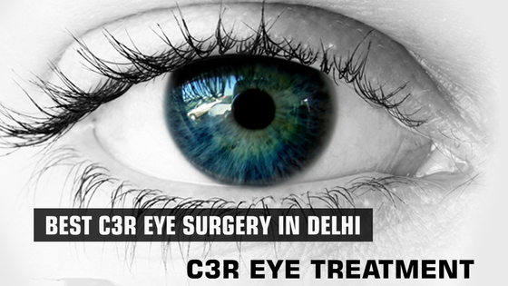 Best C3R Eye Surgery in Delhi | C3R Eye Treatment