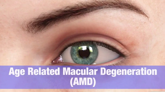 Macular Degeneration Eye Problem Treatment in Delhi