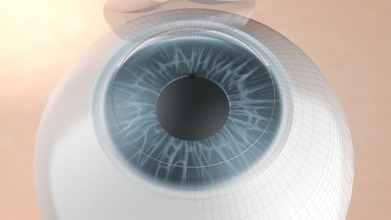 What is the Side Effect of Cataract Surgery?