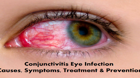 Conjunctivitis Eye Infection Causes, Symptoms, Treatment & Prevention