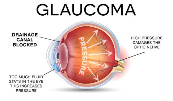 Ethnicity and Genetics of Glaucoma