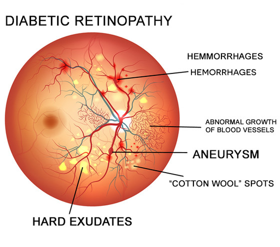 What causes Diabetic Retinopathy