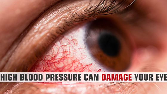 High Blood Pressure Can Damage Your Eyes