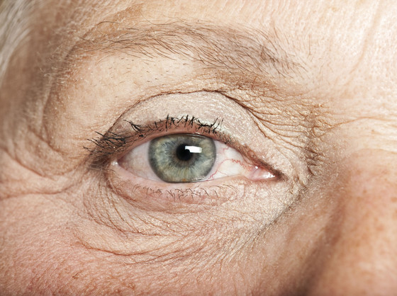 Best Age Related Macular Degeneration Treatment in Delhi India