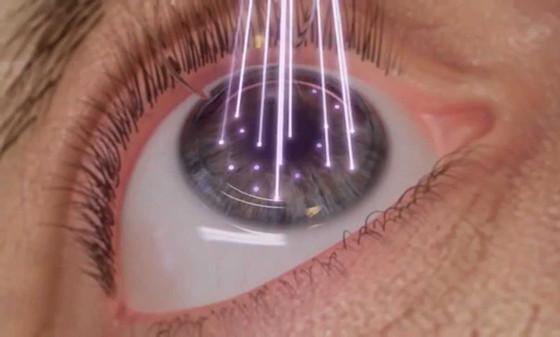 Robotic femto Lasik eye surgery in Delhi