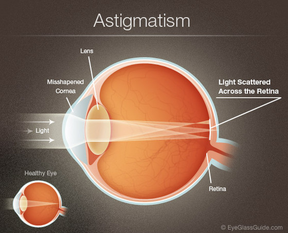 How to treat Cylinder Number (Astigmatism) in Eyes