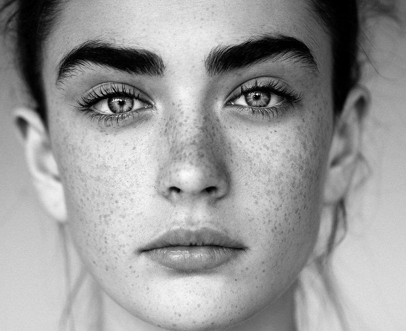 Schwarz-Weiß-Porträt der Frau mit Freckl