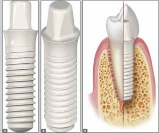 Uma nova geração de IMPLANTES CERÂMICOS(implantes brancos) está modificando o conceito de estética,
