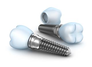 12 perguntas/respostas que você deve saber antes de fazer um implante