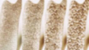 Osteoporoza_fazy_128463659_©_crevis.jpg
