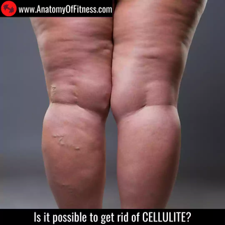 Can we get rid of CELLULITE?