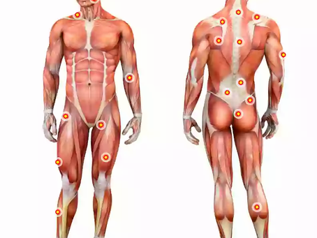 How to classify SKELETAL MUSCLES?