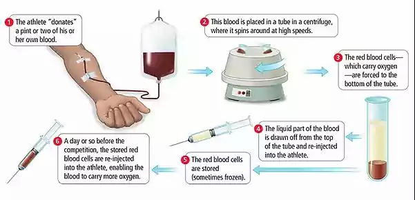 One of the processes of BLOOD DOPING.