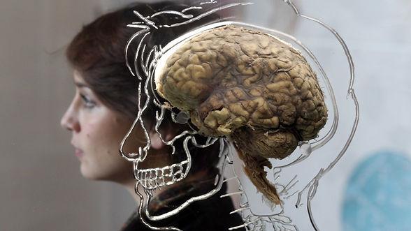 brain9.jpg