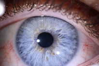Photo d'iris pour iridologie avec appareil photo macro