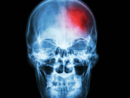 Concussions ARE Traumatic Brain Injuries