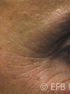 Anti Aging vor der Behandlung
