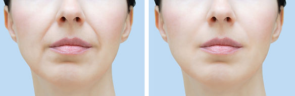 A%20woman's%20face%20with%20wrinkles.%20