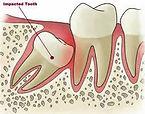 Braces, Implant, Sydney emergency dentist