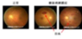 網膜症2.jpg