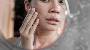 Prevención de un Melanoma