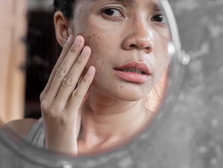 Preventing Melanoma