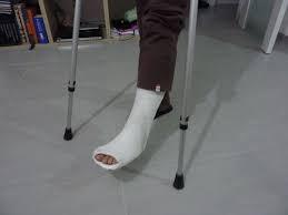 Se un'auto mi schiaccia il piede sono risarcito?