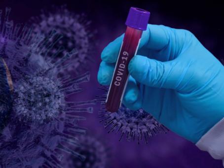 Estudio encuentra que la proteína de suero de Leche Humana puede suprimir  replicación de COVID-19