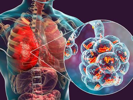 La neumonía bacteriana causó la mayoría de las muertes en la pandemia de influenza de 1918