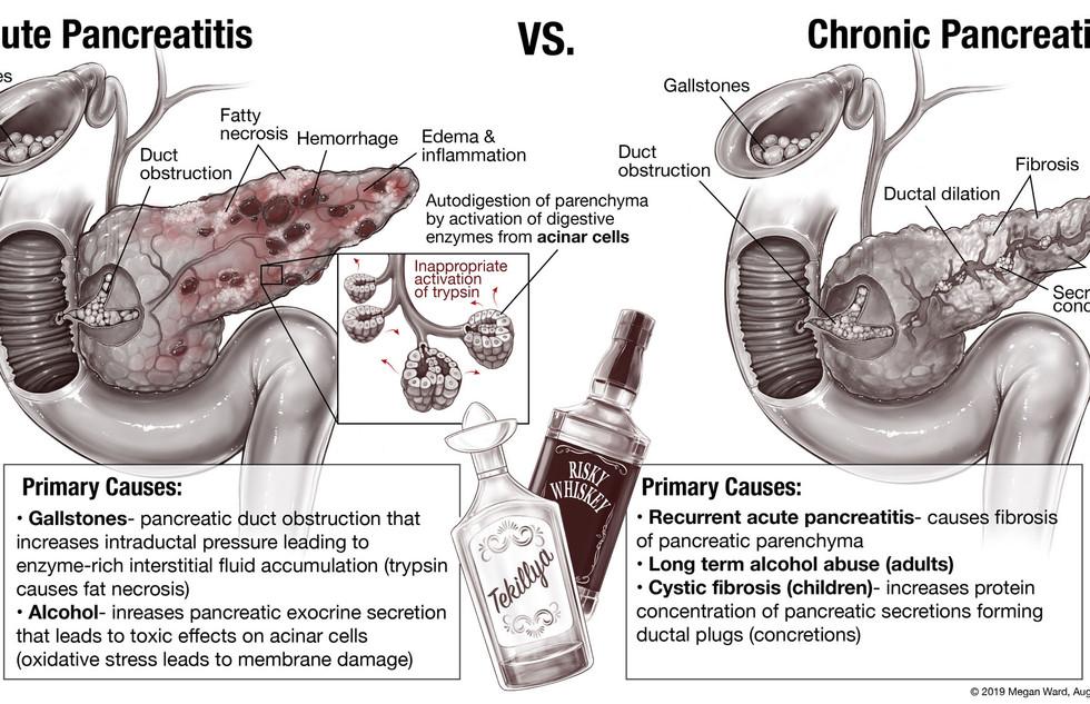 S2 A_vs_C_pancreatitis.jpg