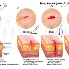 BLUNT VS. SHARP FORCE INJURIES