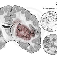 GLIOBLASTOMA GROSS & MICROSCOPIC FEATURES