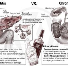 ACUTE VS. CHRONIC PANCREATITIS