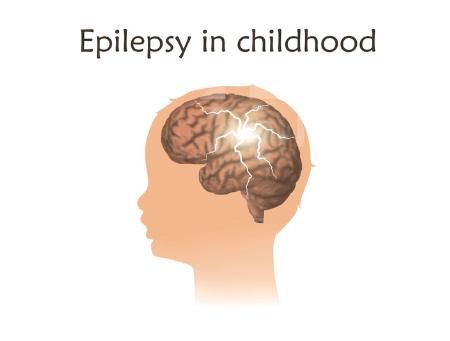 Can Cranial Osteopathy Help Childhood Epilepsy?