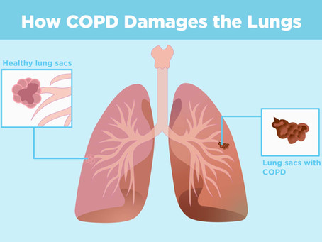 Breathe Better With COPD