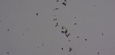 Microscopic image with 10% of the mold spores compared to the before image. 1 hour into treatment
