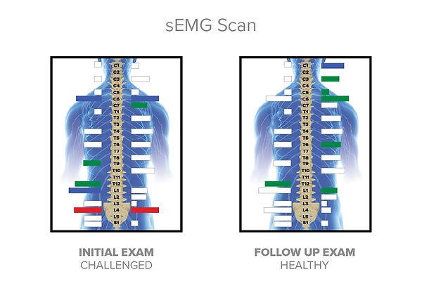 Hero Utility Belt sEMG Scan