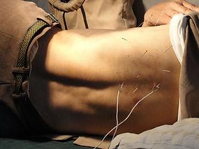acupuncture-3275458_1920.jpg
