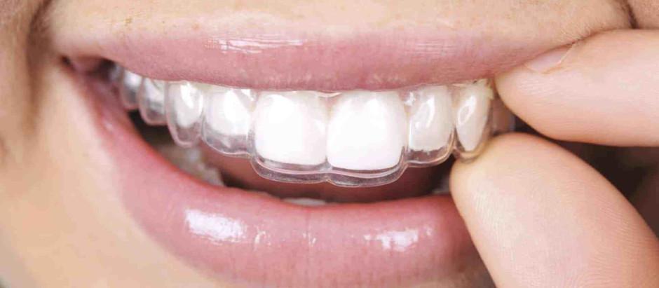 ¿Qué son los retenedores de ortodoncia?