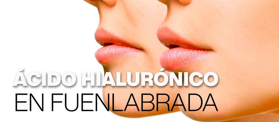 Aumento de labios con ácido hialurónico en Fuenlabrada