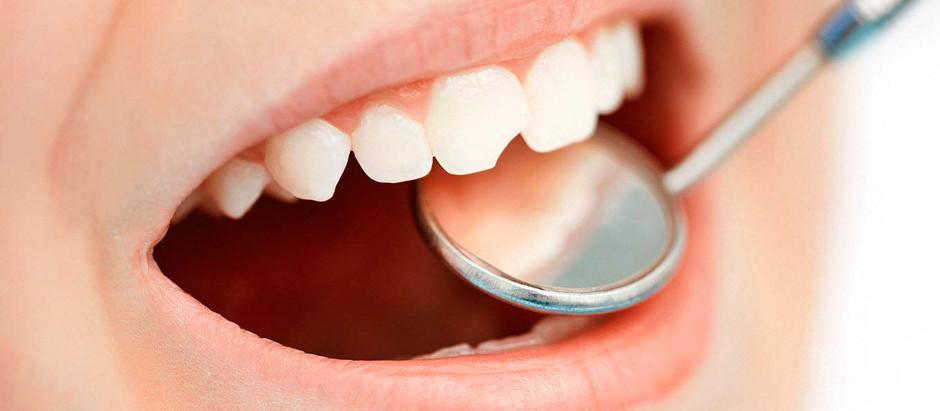 Traumatismos dentales en verano: ¿Cómo actuar?