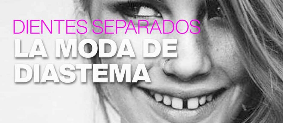 Diastema, la moda de los dientes separados, tu dentista en Fuenlabrada te advierte de los riesgos.