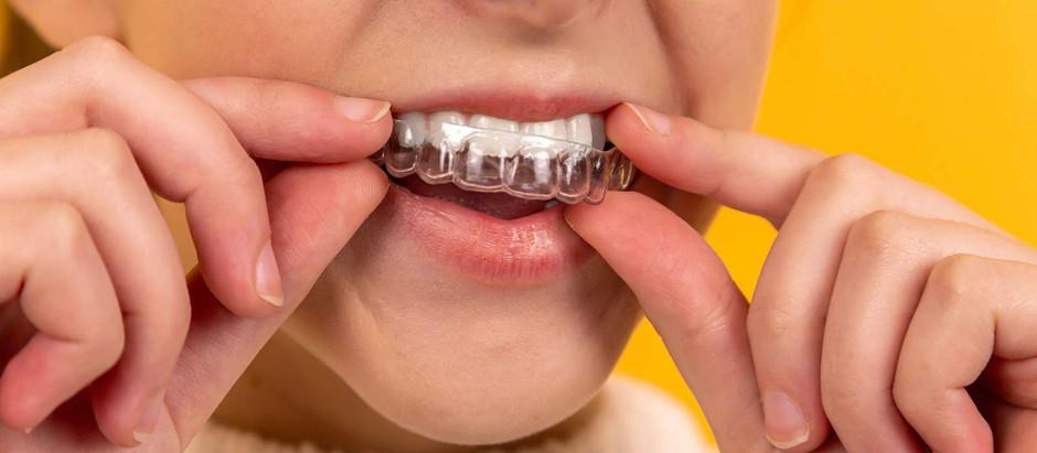 Lo que debes saber antes de comenzar un tratamiento de ortodoncia