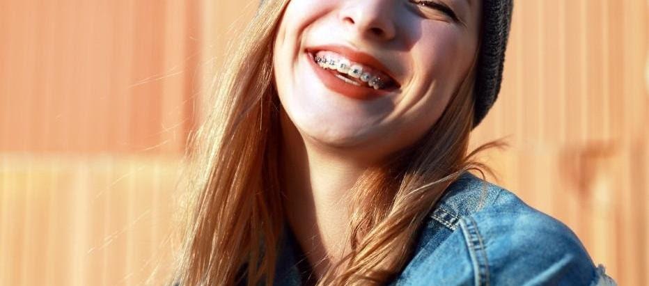 ¿Cuándo colocar la ortodoncia a los adolescentes?