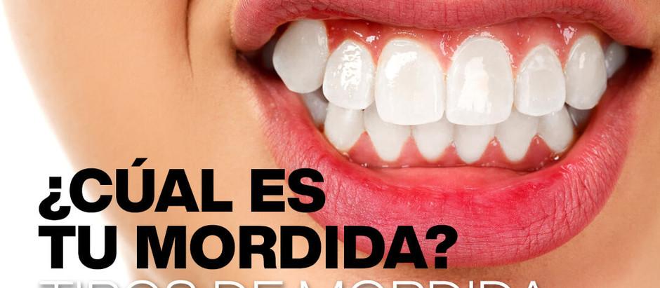 ¿Cuál es tu tipo de mordida?. Tipos de mordidas y maloclusiones dentales.