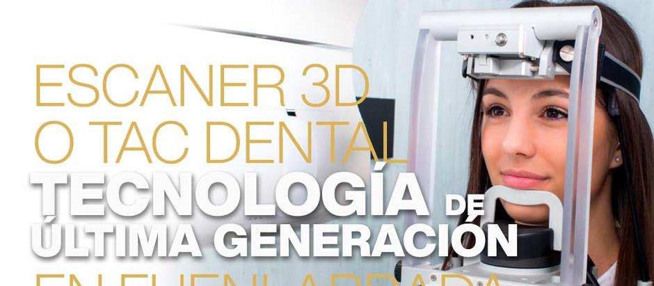 Nuevo TAC Dental: tecnología de última generación en Ortodentist, tu dentista en Fuenlabrada.
