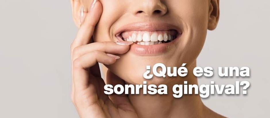 ¿Qué es la sonrisa gingival?