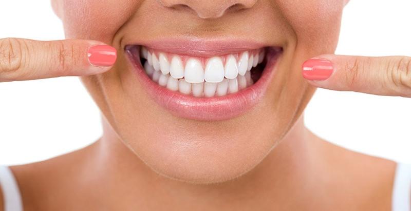 Preguntas frecuentes sobre el Diseño de sonrisa con carillas dentales