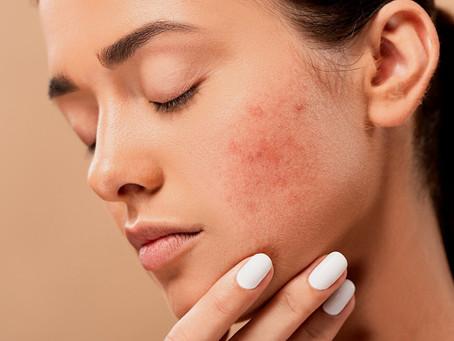 El significado de los granitos según la zona del rostro donde aparecen